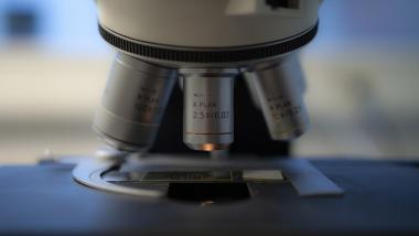 Reprograman células para eliminar los signos del envejecimiento - Ciencia, Investigación